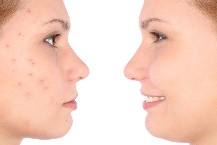 lynlash capacitacion de gg-golw-procedimiento-facial-bogota-colombia-2